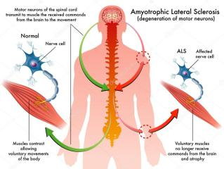 depositphotos_59206423-stock-illustration-als-amyotrophic-lateral-sclerosis